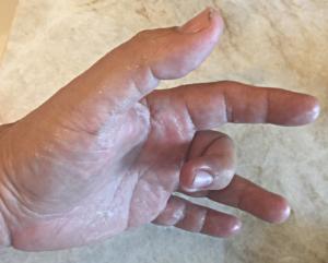Lee's left hand